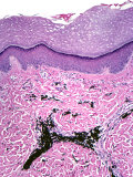 Cross-Section of Human Skin with Embedded Dye from a Tattoo