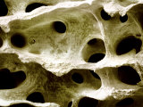 Human Femur Spongy or Cancellous Bone