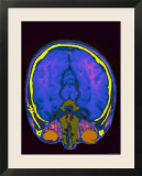 Brain Hemispheres Visible Colorized MRI Normal