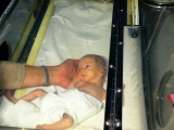 A Premature Baby Weighing Only Two Pounds at Redhill Hospital  Surrey