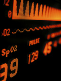 Spo2  Dissolved Oxygen  and Cardiac Information on a Medical Monitor