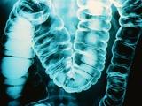 Radiograph of Intestine