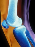 Normal Human Knee Joint and Patella