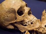 Skull of Early Settler