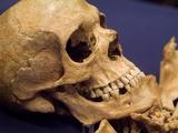 Skull of Early Settler