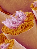 Sperm in Testis of a Rat