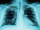 X-Ray of Dark Lungs