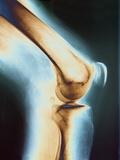 Knee X-ray Papier Photo