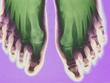 X-ray of Feet