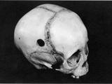Trepanning: Skull