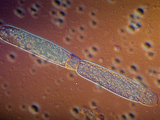 Gregarine Parasitic Protozoa Sporonts in Asexual Reproduction  DC  LM X100