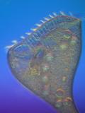 Living Stentor Coeruleus Ciliate Protozoan  LM X63