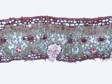 Cross-Section of an Oleander (Nerium Oleander) Leaf Showing the Recessed Stomates  LM X100