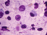 Pneumocystis Carinii Fungus