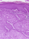 Skin Section from a Patient with Squamous Cell Carcinoma  LM X25