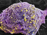 Hiv Infected Cell  SEM