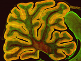 A Section of the Cerebellum That Has Been Fluorescently Labeled for the Ip3 Receptor