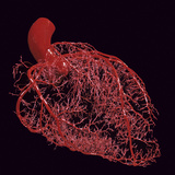 Resin Cast of Coronary Arteries of the Human Heart