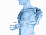 Biomedical Illustration of the Use of Cybernetic or Robotic Arms as a Replacement for Limb Loss