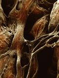 Human Heart Papillary Muscles