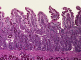 Section of Villi in the Large Intestine  LM