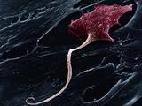A Neuron with a Long Axon