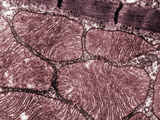 Skeletal Muscle Sarcomeres and Associated Mitochondria  TEM