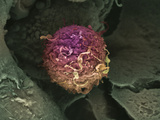 Cancer Cell  Breast  SEM X4 000