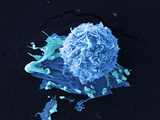 Breast Cancer Cell  SEM