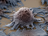 Lung Cancer Cell  SEM X3500