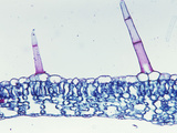 Cross-Section of a Foxglove Leaf with Trichomes (Digitalis)  LM X55