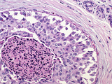 Cross-Section of Comedo Intraductal Carcinoma of the Human Breast in an Elderly Woman