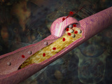 Illustration of Atherosclerosis in an Artery a Lesion Develops in the Artery Wall
