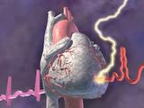 Heart Attack  Graphic Representation of Heart Attack
