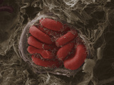 Red Blood Cells in a Blood Vessel in Mammary Tumor  SEM