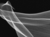 X-Ray of Calla Lily Flower Petals