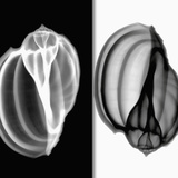 X-Ray of Mollusk Gastropod Shells