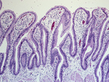 Section of the Normal Human Gallbladder Mucosa Villi Covered by Simple Columnar Epithelium  LM X26