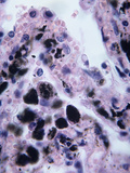 Lung Anthracosis Caused by the Anthrax Bacterium (Bacillus Anthracis)  LM X200