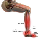 Sports Injuries of the Lower Leg and Foot  Labeled
