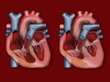 Biomedical Illustration of Hypertrophic Cardiomyopathy