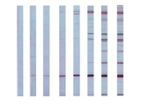 Western Blot Test Illustration
