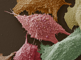 Lung Cancer Cells  SEM