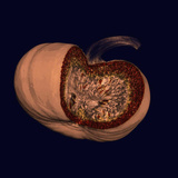 Ct of an Opened Pumpkin