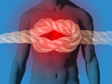 Illustration of a Knot in the Chest Illustrating Pain  Heart Attack
