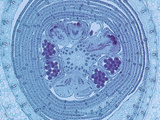 Cross-Section of a Young Male Flower Bud of Corn (Zea Mays)  a Monocot  LM X10