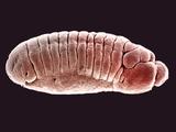 Embryo of the Fruit Fly (Drosophila Melanogaster)  SEM X25