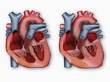 Hypertrophic Cardiomyopathy  a Leading Cause of Sudden Cardiac Death in Young Athletes