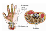 Illustration of the Anatomy of the Carpal Tunnel as Seen from Palmar and Cross-Sectional Views