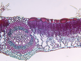 Cross-Section of an Oak (Quercus) Sun Leaf  LM X45